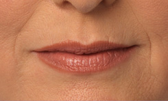 Juvederm Photos