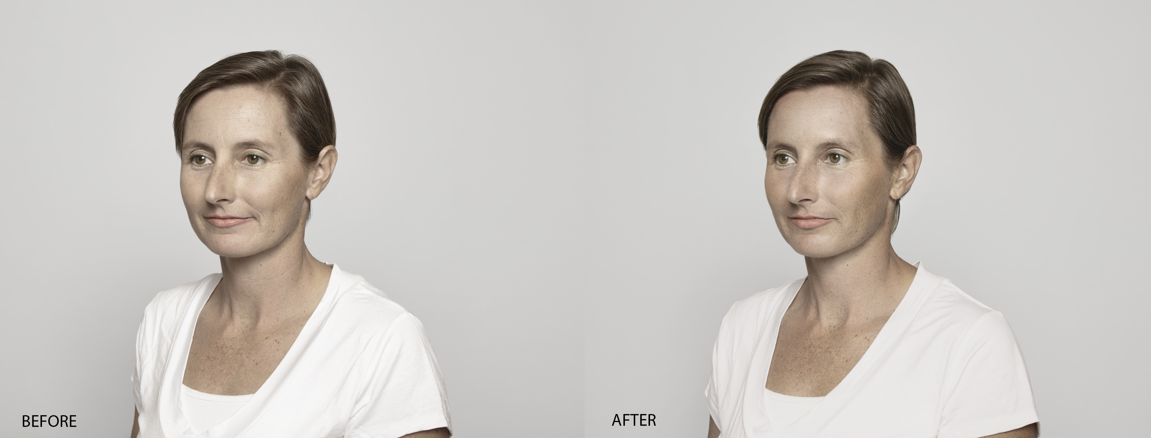 Anne Laure Before & After