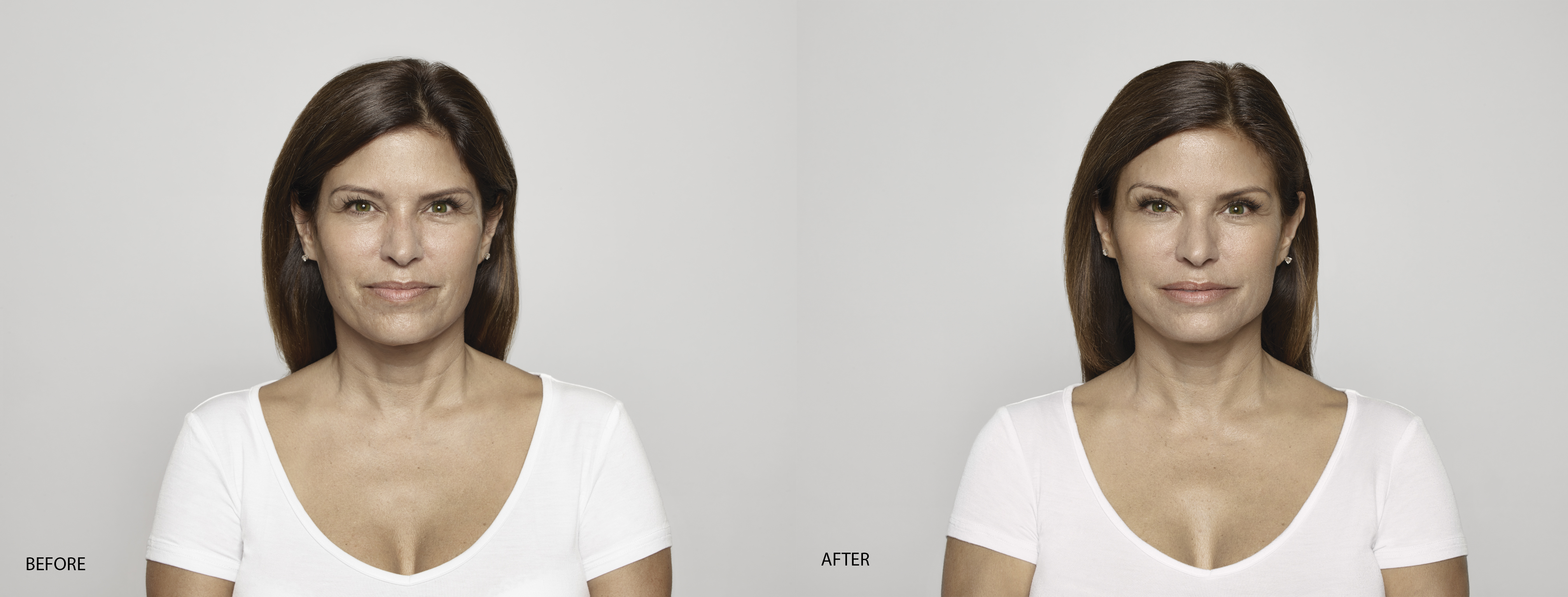 Victoria Before & AFTER
