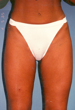 Liposuction Before And After 3 ⋆ South Florida Center For