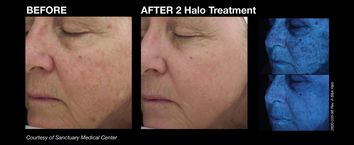 halo_before_and_afters_1