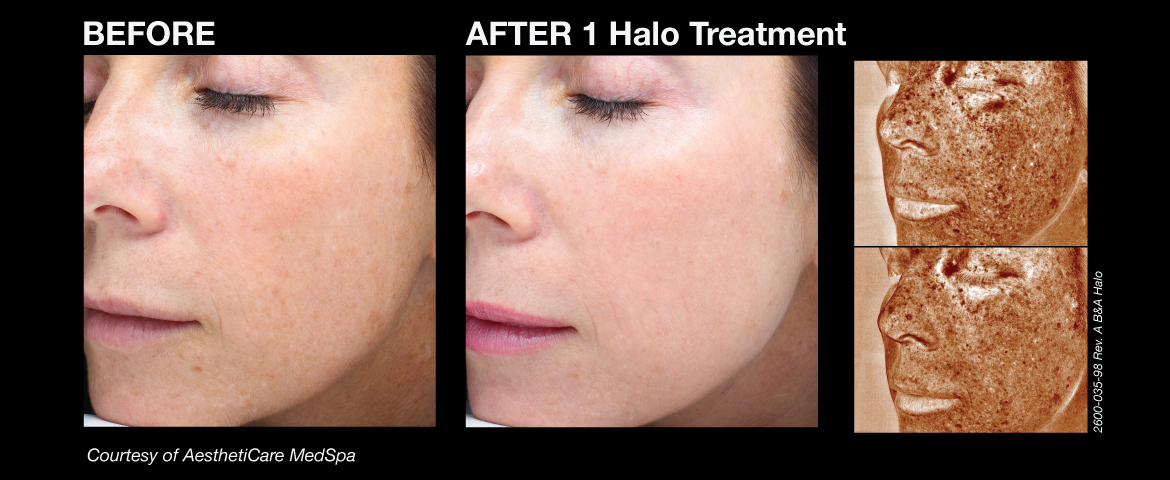 halo_before_and_afters_2_final