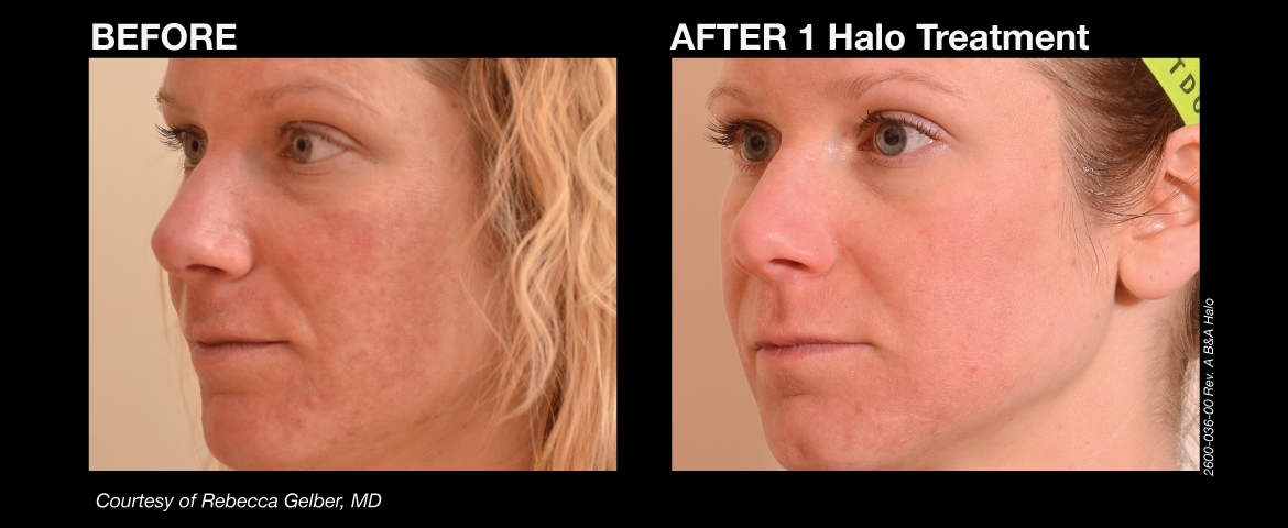 halo_before_and_afters_4_final