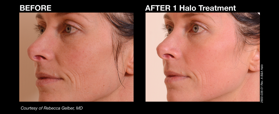 halo_before_and_afters_5_final