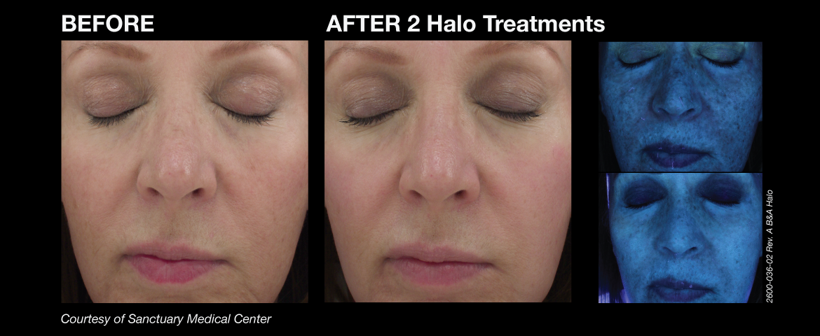 halo_before_and_afters_6_final