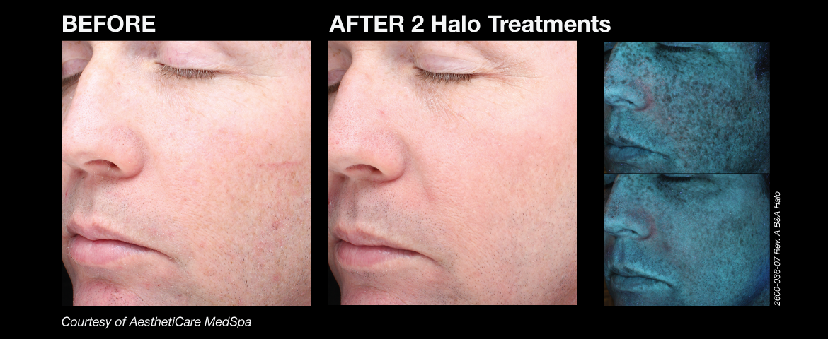 halo_before_and_afters_7_new