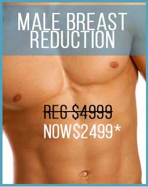 Gynecomastia Surgery Promotion $2499