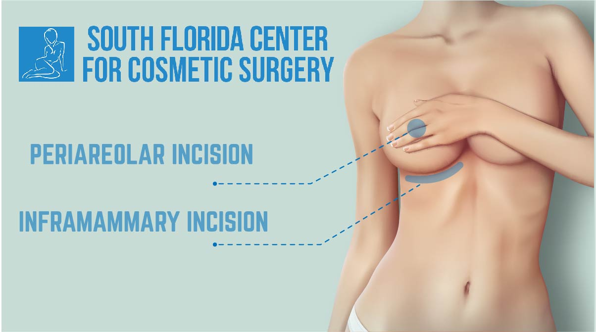 breast incisions type: Periareolar Incision and Inframammary incision south florida center for cosmetic surgery