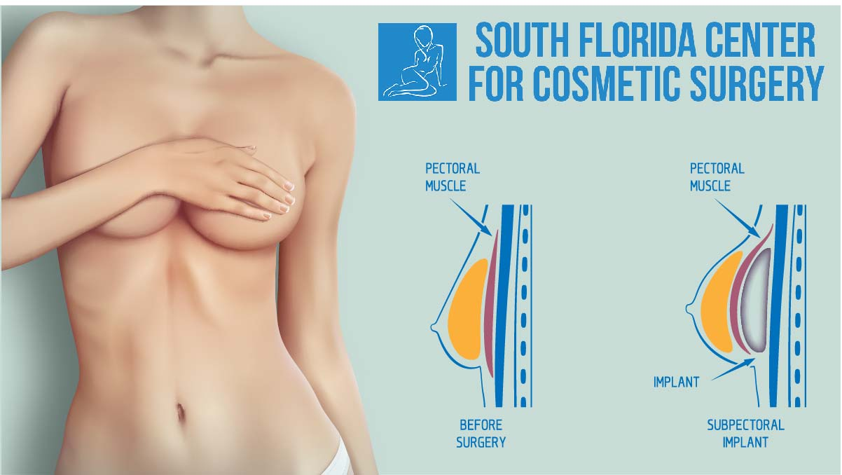 Subpectoral Implant Diagram South Florida Center For Cosmetic Surgery